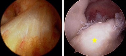 (Left) Arthroscopic picture of the normal ACL. (Right) Arthroscopic picture of torn ACL [yellow star].
