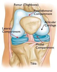 A normal knee joint: Some structures have been removed to better show the smooth healthy cartilage lining the joint. The medial, lateral, and patellofemoral compartments are shown with red arrows.